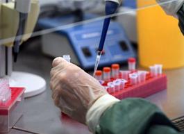 Учёные Роспотребнадзора создали высокоточный тест для диагностики COVID-19