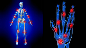 8-Things-I-Didnt-Know-About-Arthritis-Until-It-Happened-To-Me-722x406