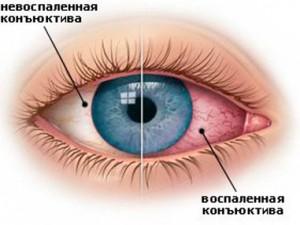 sindrom-suhogo-glaza
